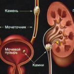 Mochekamennaya-bolezn