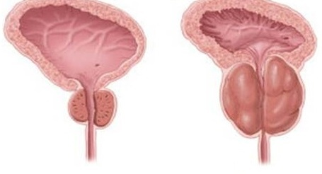 Из за хронического простатита может быть понос